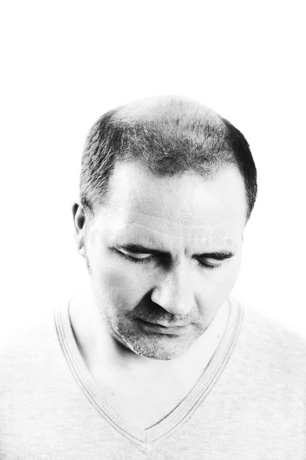 Mann von mittlerem Alter betroffen durch die Haarausfall Kahlheitsalopezie Schwarzweiss lizenzfreies stockbild