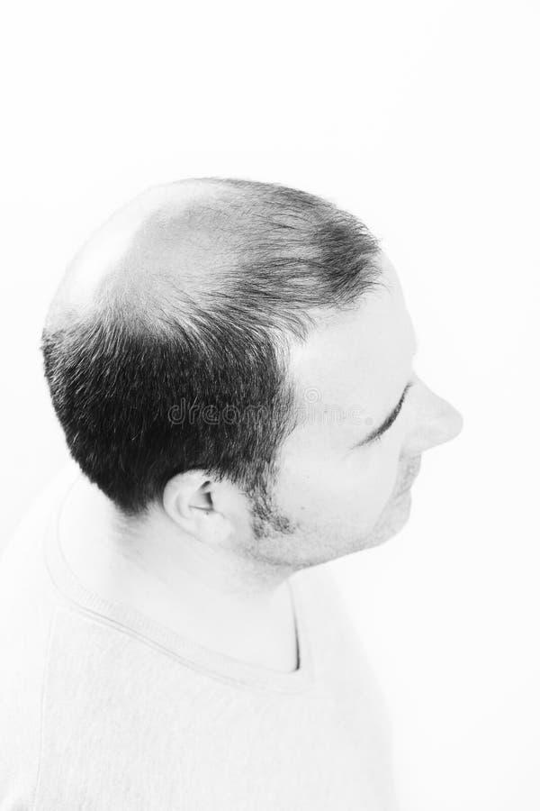 Mann von mittlerem Alter betroffen durch die Haarausfall Kahlheitsalopezie Schwarzweiss lizenzfreies stockfoto