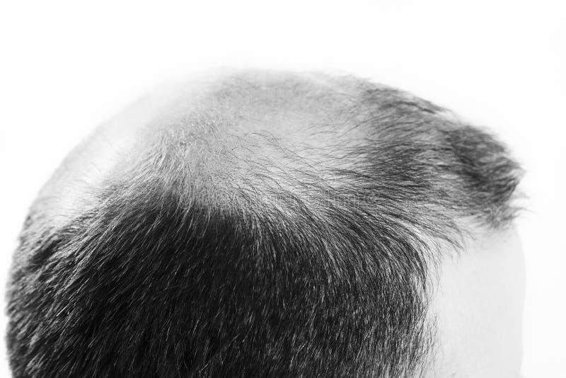 Mann von mittlerem Alter betroffen durch die Haarausfall Kahlheitsalopezie Schwarzweiss lizenzfreie stockfotografie