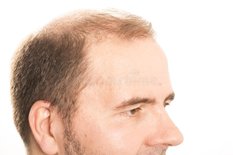 Mann von mittlerem Alter betroffen durch die Haarausfall Kahlheitsalopezie Schwarzweiss stockfoto