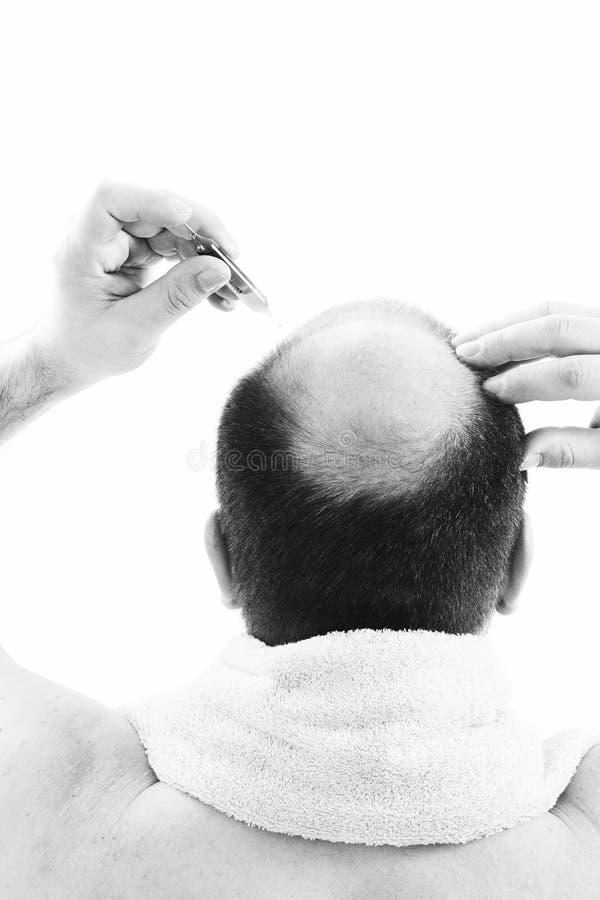 Mann von mittlerem Alter betroffen durch Haarausfall Kahlheits-Alopezieabschluß herauf Schwarzweiss--, weißen Hintergrund lizenzfreies stockfoto