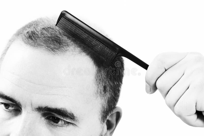 Mann von mittlerem Alter betroffen durch Haarausfall Kahlheits-Alopezieabschluß herauf Schwarzweiss--, weißen Hintergrund lizenzfreies stockbild