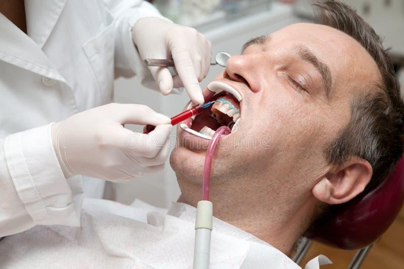 Mann während des Zahnweißungsprozesses lizenzfreie stockfotografie