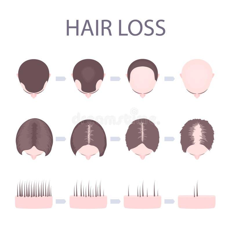 Mannelijk en vrouwelijk haarverlies stock illustratie