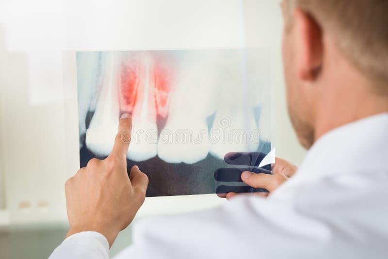 Mannelijke arts met röntgenstraal stock foto's