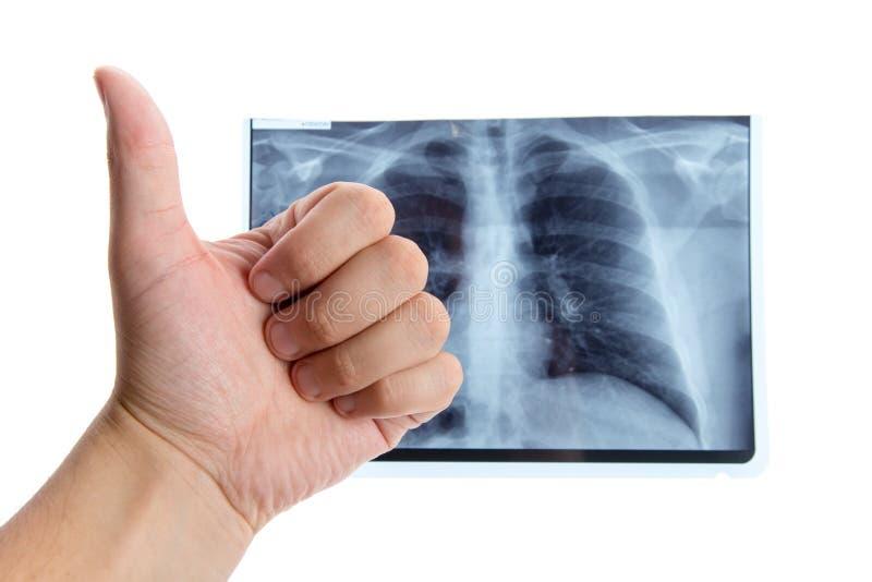 Mannelijke hand die duimen naast longradiografie tonen stock afbeeldingen