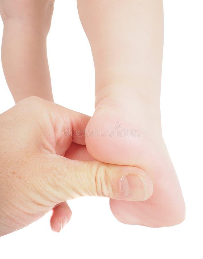 Mannelijke handholding die stevig met duim onder voet drukken stock foto's