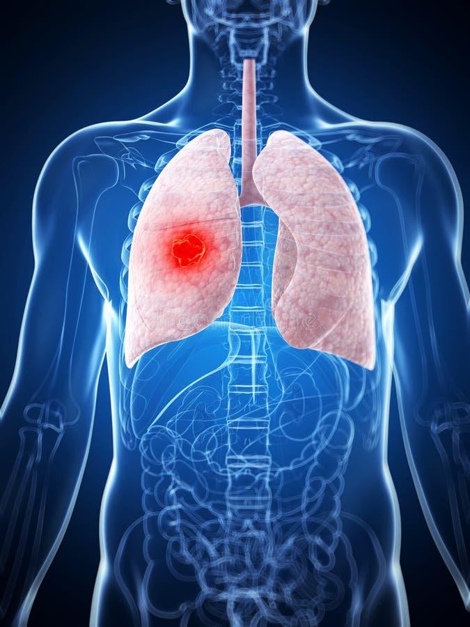 Mannelijke long - kanker vector illustratie