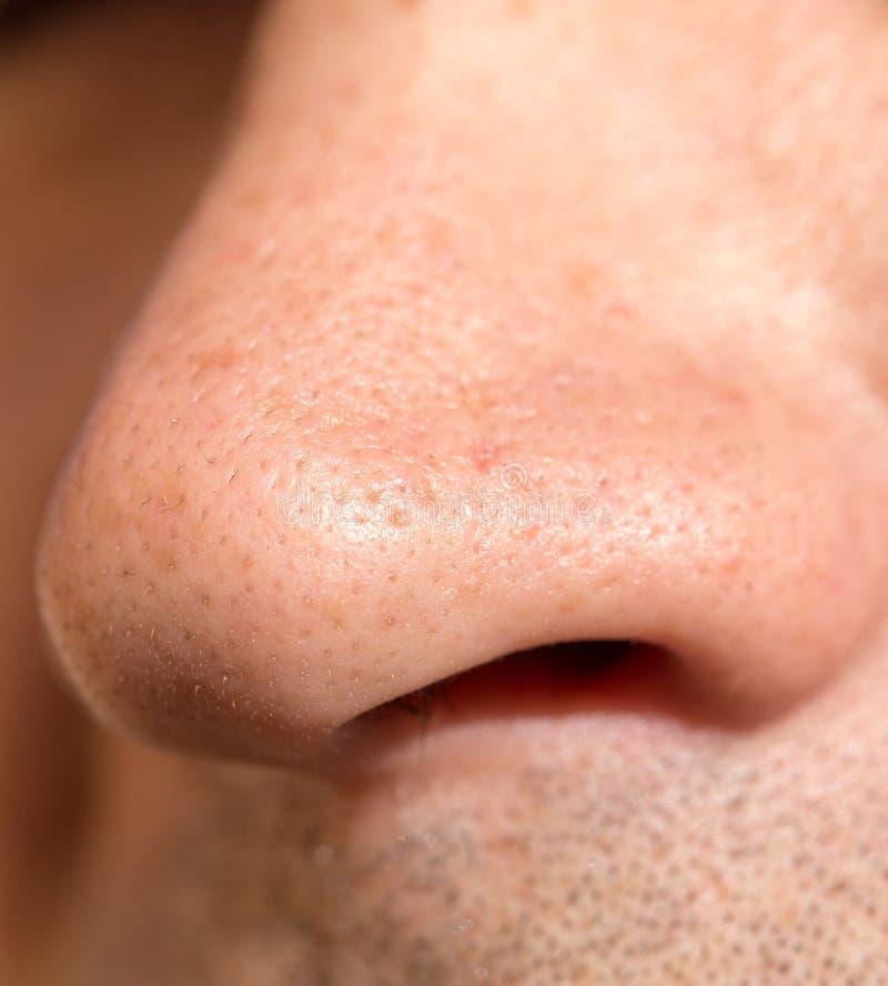 Mannelijke neus sluit royalty-vrije stock fotografie