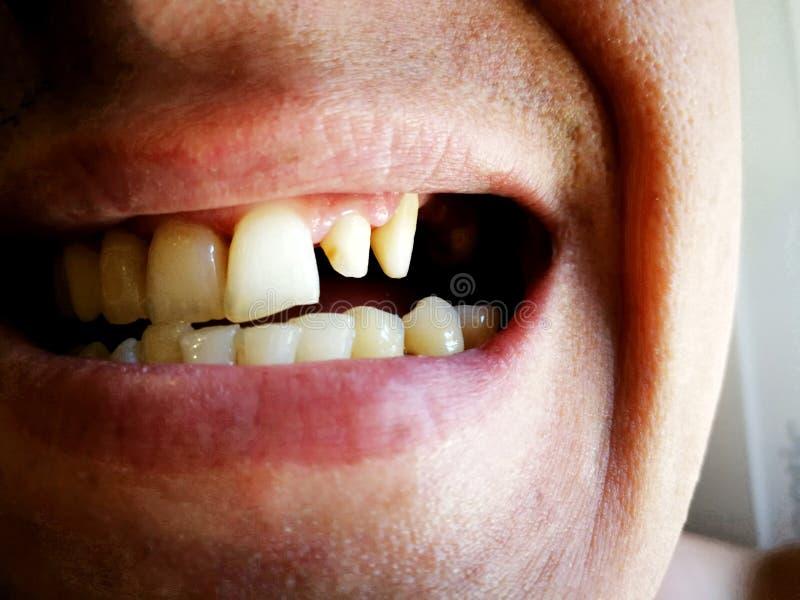 Mannen grinded hans tänder för porslinkronor eller fanér royaltyfri fotografi