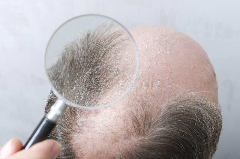 Mannen har ett problem med h?rf?rlust Begrepp av sökande för att lösning ska stoppa hårförlust Closeup av magnifuing exponeringsg arkivbild