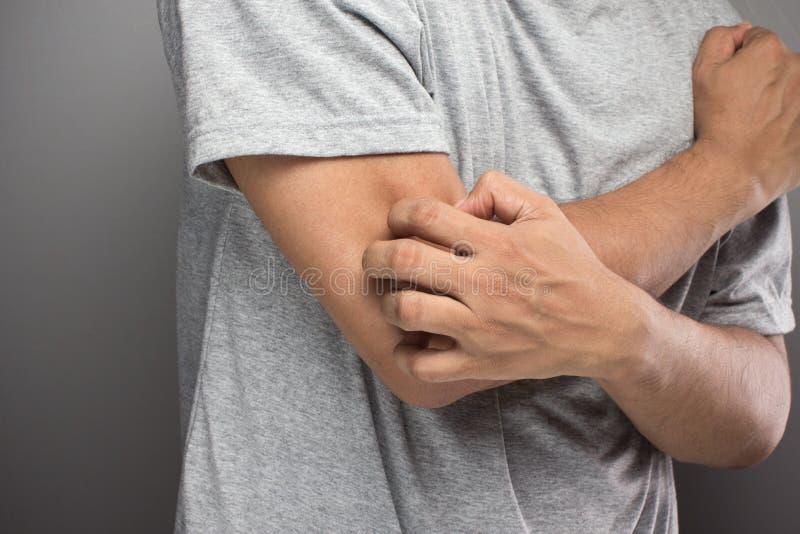 Mannen har problemhud, allergin som iching hud fotografering för bildbyråer
