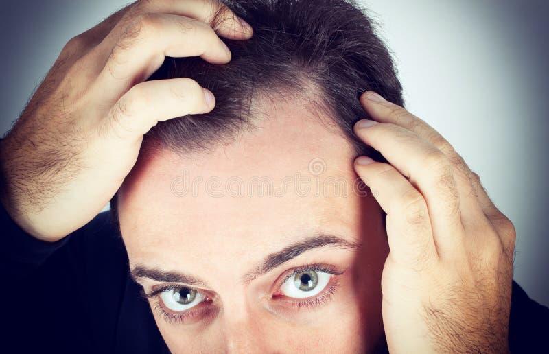 Mannen kontrollerar hårförlust fotografering för bildbyråer