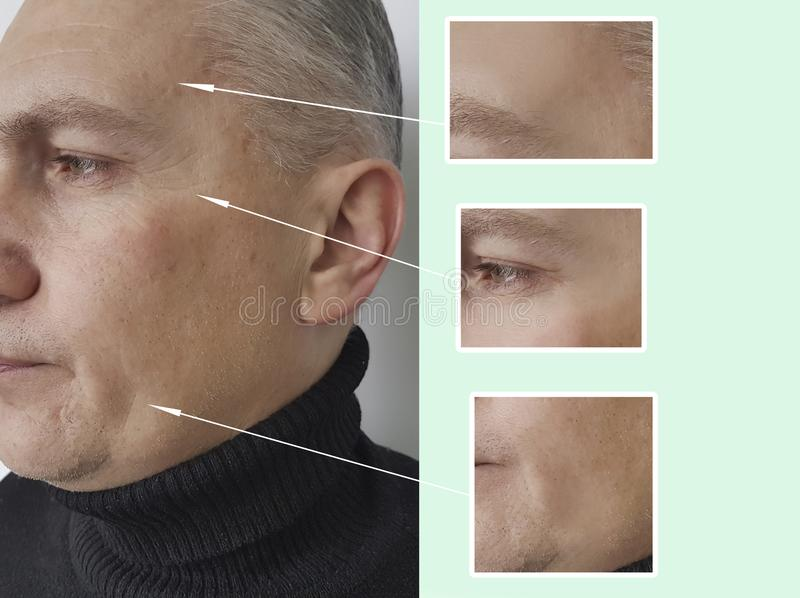 Mannen rynkar att åldras före och efter vård- pigmentering för akne för tillvägagångssättkosmetologkosmetologen fotografering för bildbyråer