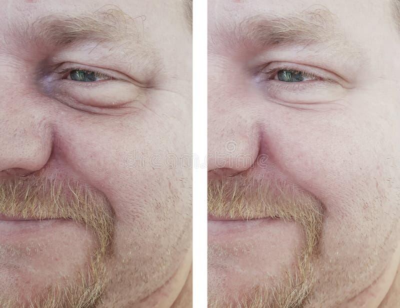 Mannen synar bloating påseskrynklor för efter tillvägagångssätt fotografering för bildbyråer