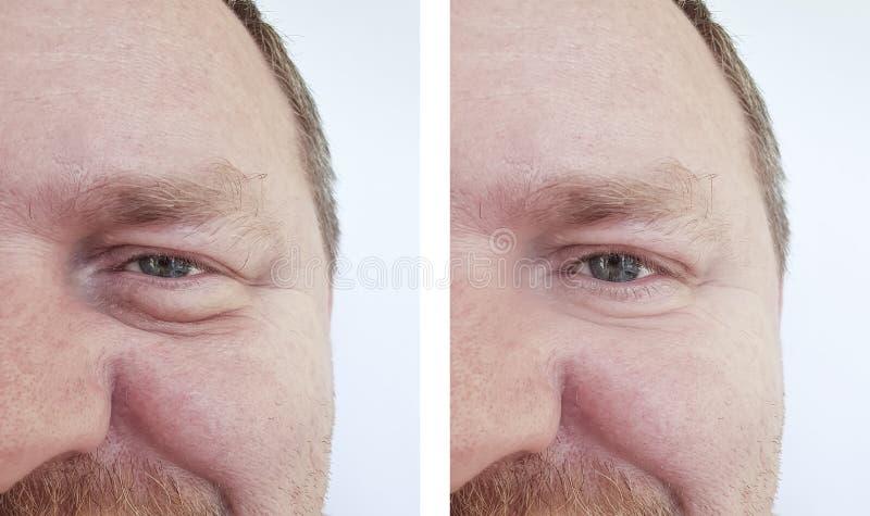 Mannen synar bloating skrynklor för efter tillvägagångssätt arkivfoton