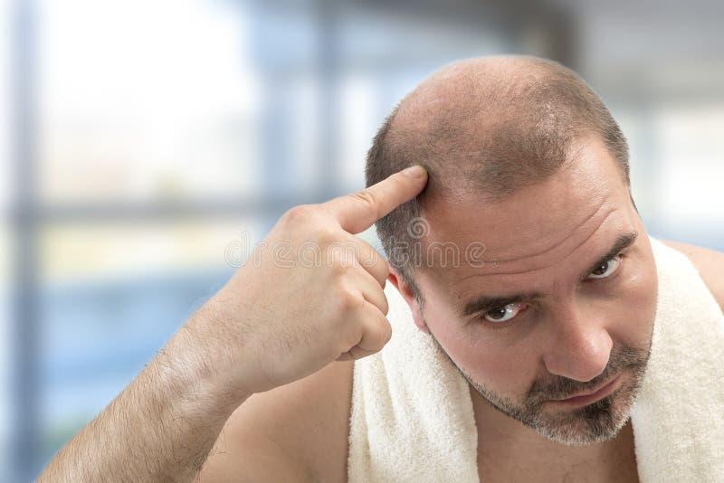 Mano adulta dell'uomo di concetto della soluzione di perdita dei capelli umani che indica la sua testa calva immagine stock
