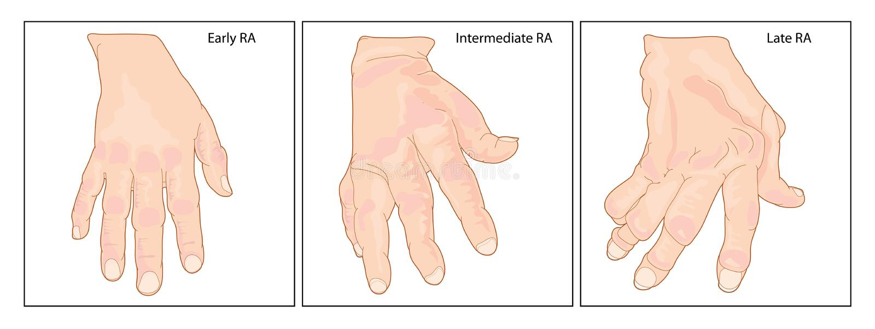Mano con l'artrite reumatoide illustrazione di stock