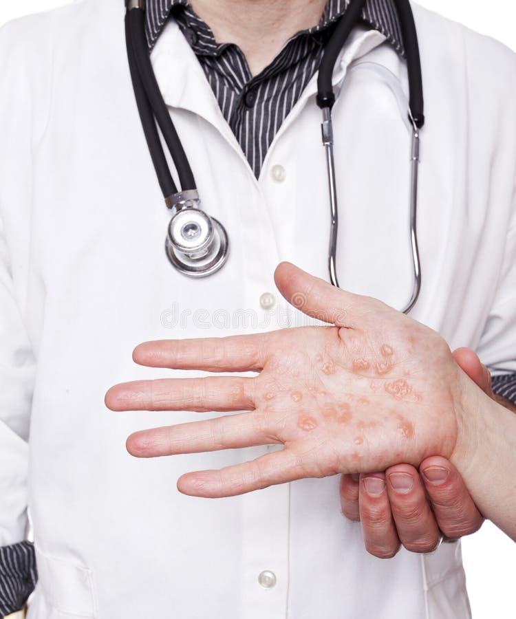 Mano d'esame del dermatologo con eczema severo fotografie stock libere da diritti