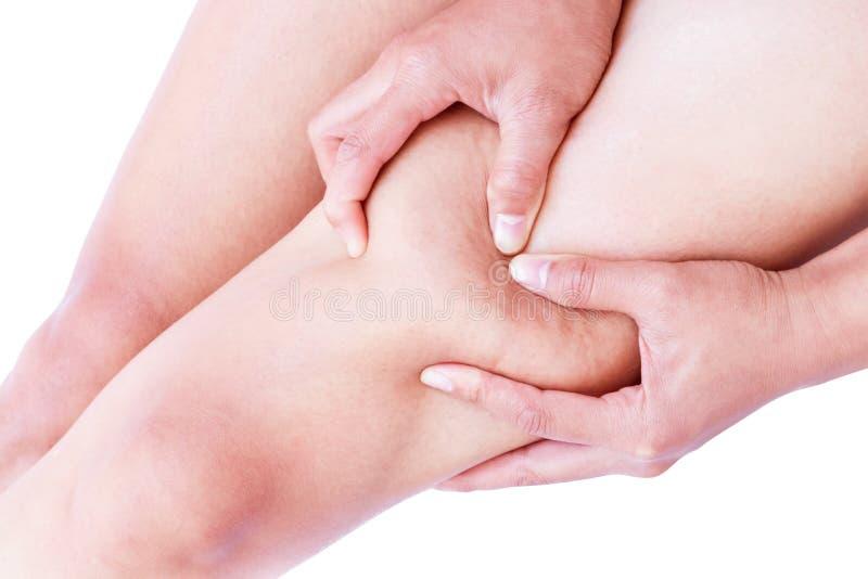 Mano de la mujer del primer que sostiene la piel de las celulitis de las piernas para el beaut imagen de archivo libre de regalías