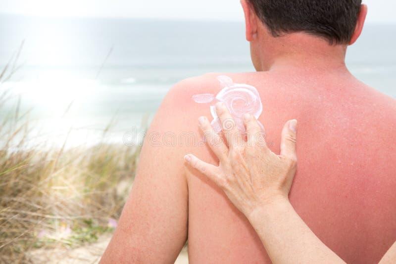 Mano de la mujer que aplica la protección solar en la parte de atrás de un hombre fotos de archivo