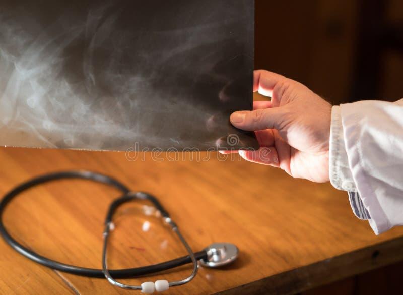 Mano del ` s del doctor que lleva a cabo imágenes de la radiografía fotos de archivo