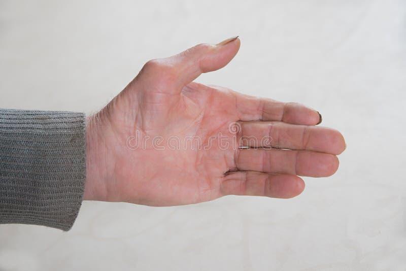 Mano di un anziano anziano con le unghie sporche immagine stock libera da diritti