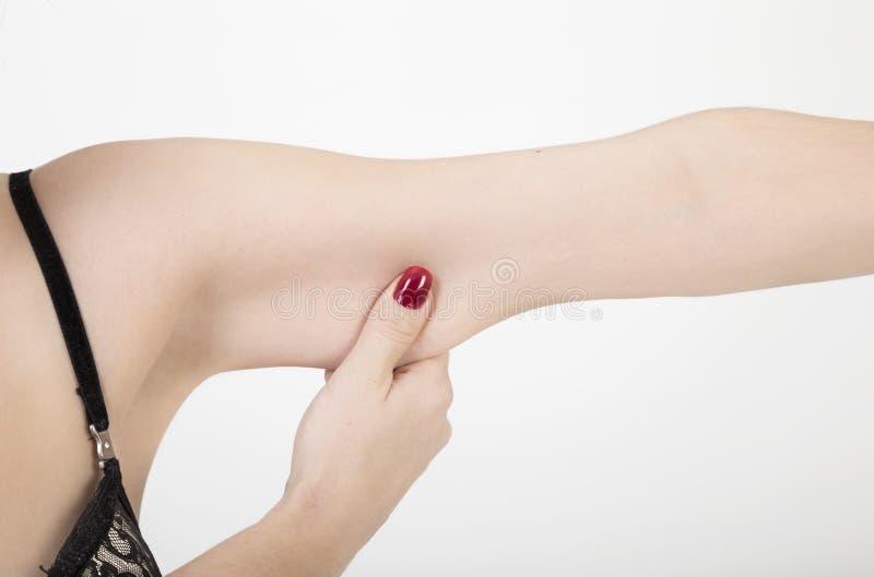 Mano femenina que exprime exceso de grasa de su brazo sobre blanco foto de archivo libre de regalías
