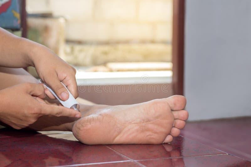Mano femminile che applica crema sul tallone per il trattamento, sanità concentrata fotografie stock