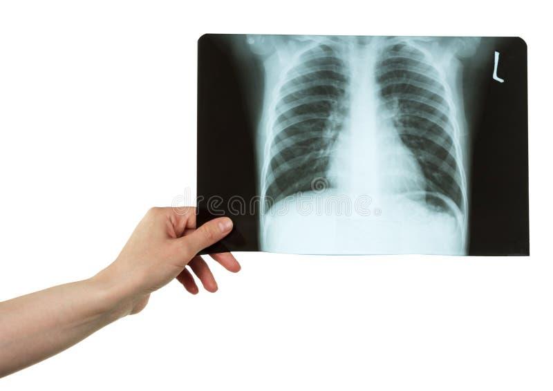 Mano femminile che giudica raggi x in bianco e nero del petto isolati fotografia stock