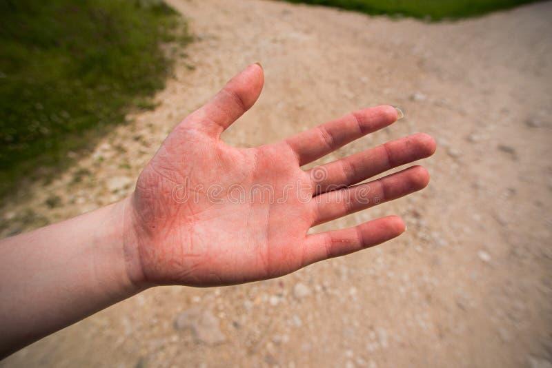 Mano herida de una mujer después de la caída en el paseo turístico imagen de archivo