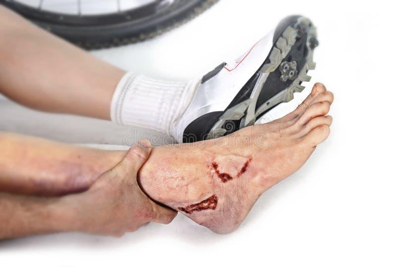 Mano y pies del hombre joven que sostienen el tobillo herido después de la sangría de lesión del accidente del desplome del monta foto de archivo