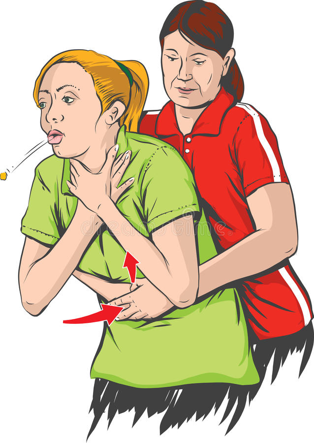 Manoeuvre de Heimlich illustration libre de droits