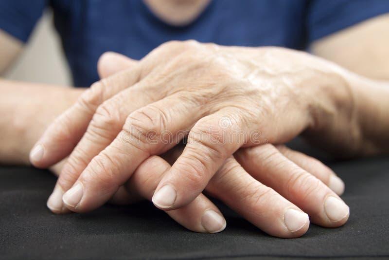 Manos de la artritis reumatoide foto de archivo libre de regalías