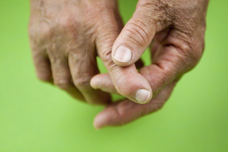 Manos de la artritis reumatoide fotos de archivo libres de regalías