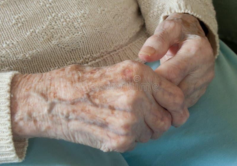 Manos mayores con artritis reumatoide imagen de archivo