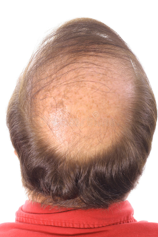 Mans bald head upclose