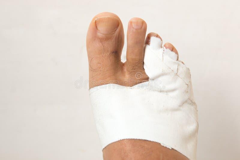 Mans bandaged up broken toe. Close up of a Mans bandaged up broken toe royalty free stock photography
