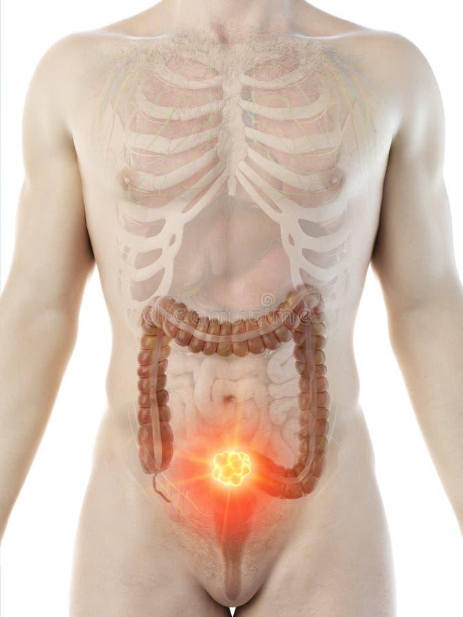 A mans colon tumor stock illustration