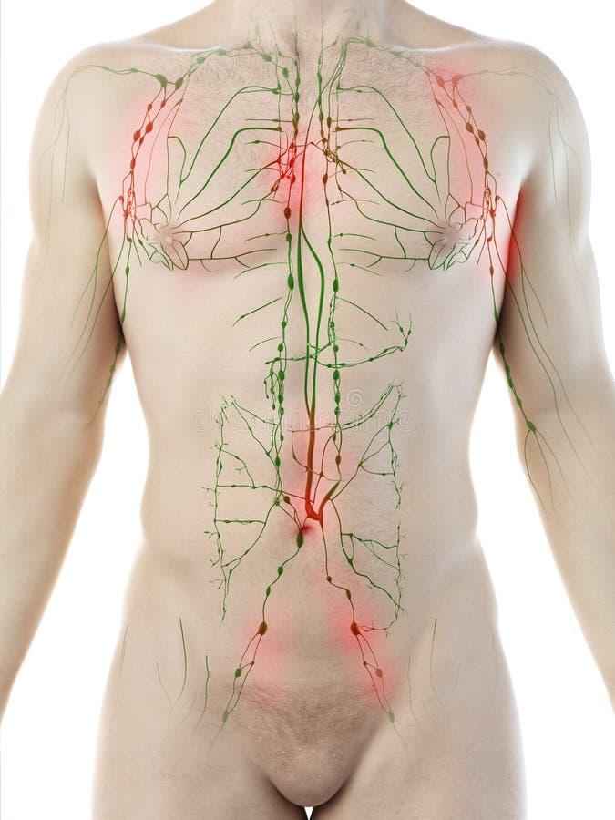 a mans det inflammerade lymfatiska systemet royaltyfri illustrationer