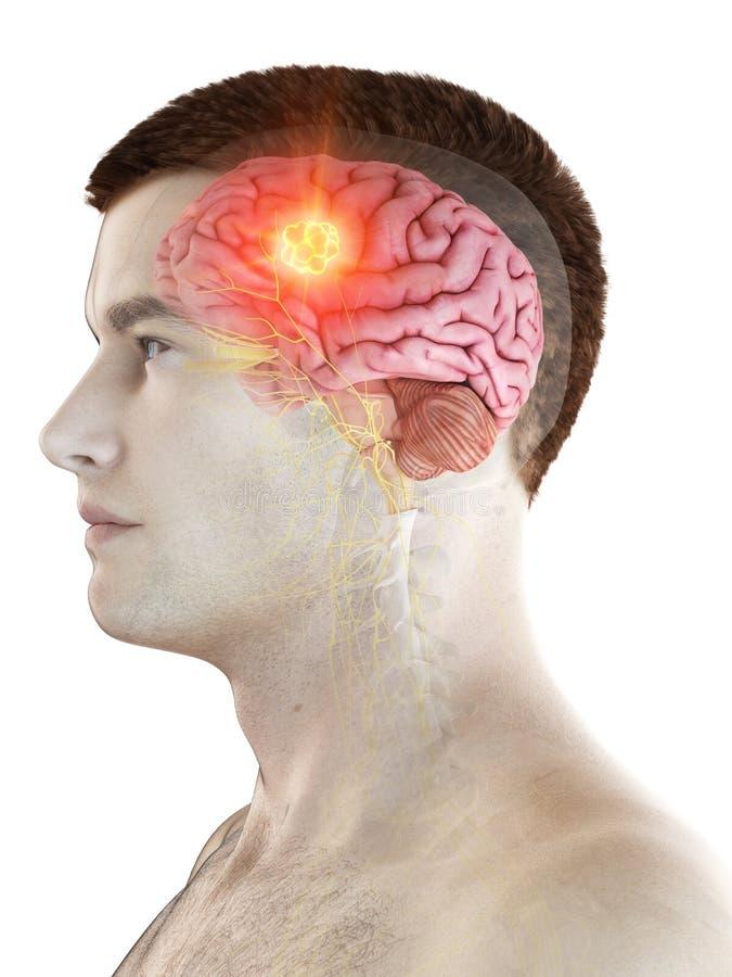 Mans hjärntumör royaltyfri illustrationer