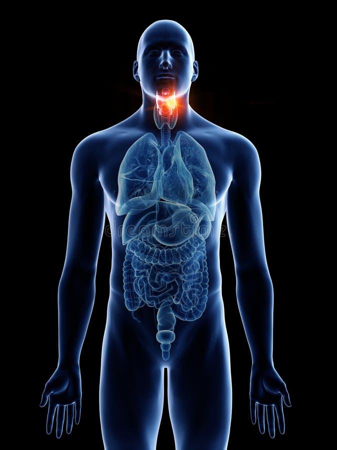 A mans larynx cancer. 3d rendered medically accurate illustration of a mans larynx cancer stock illustration