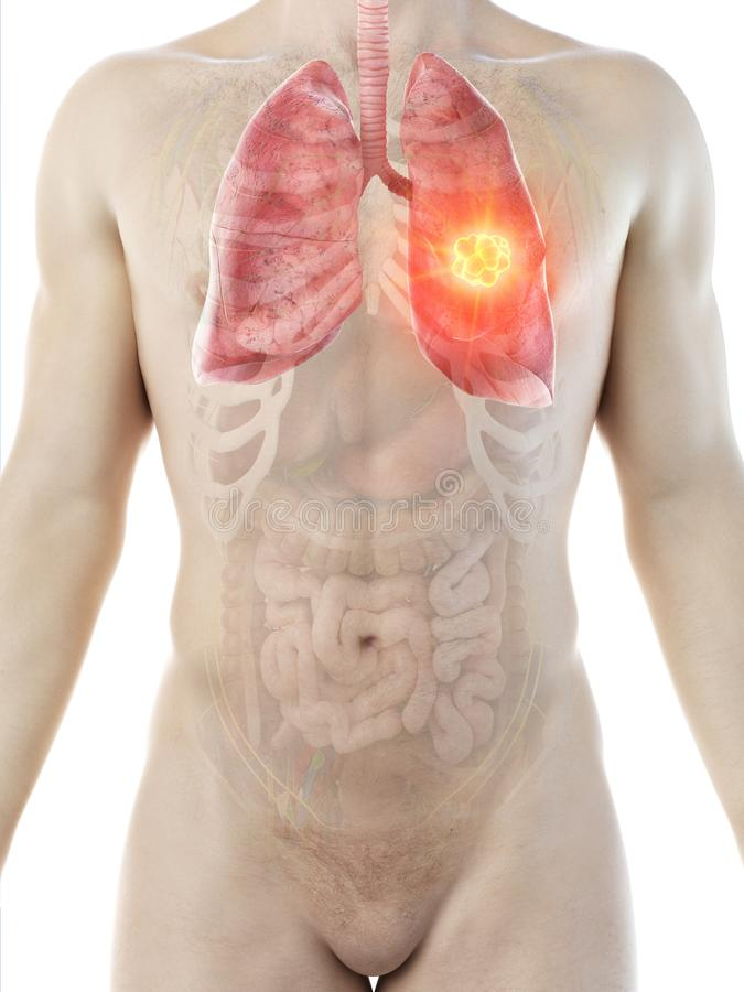 A mans lung tumor. 3d rendered medically accurate illustration of a mans lung tumor royalty free illustration