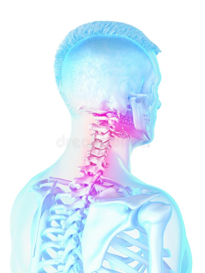 A mans painful neck. 3d rendered medically accurate illustration of a mans painful neck stock illustration