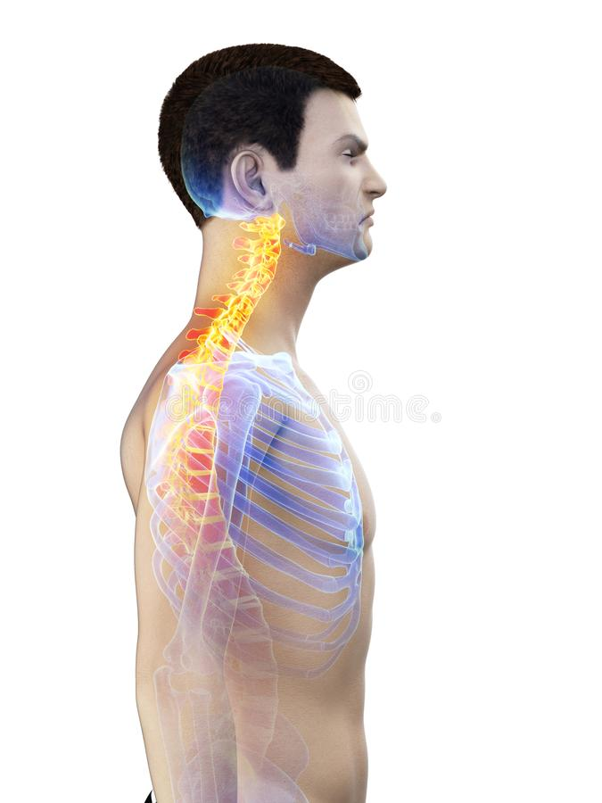 A mans painful neck royalty free illustration