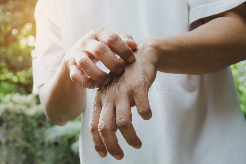 Manskrapaklåda med handen Man som skrapar hans handsjukvård c royaltyfri foto