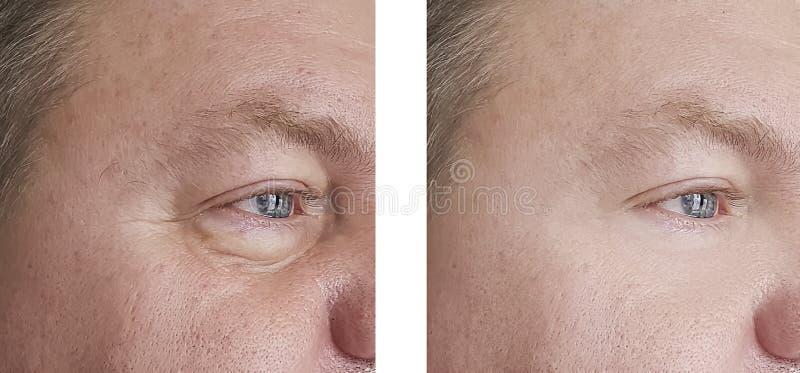 Manskrynklor före och efter tillvägagångssättbloatingskinen fotografering för bildbyråer