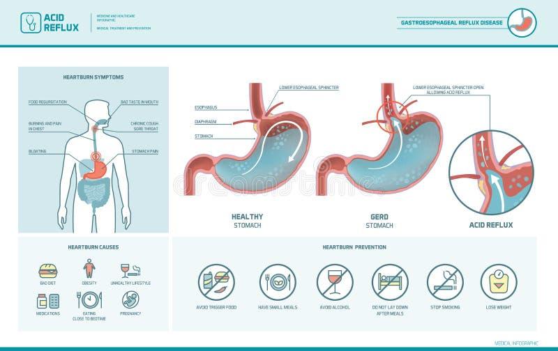 Maré baixa ácida e azia infographic ilustração stock
