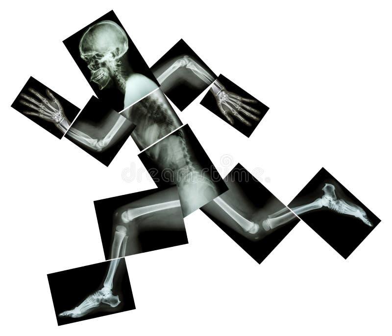 Maratona (l'osso umano sta correndo), (raggi x del corpo intero) immagini stock libere da diritti
