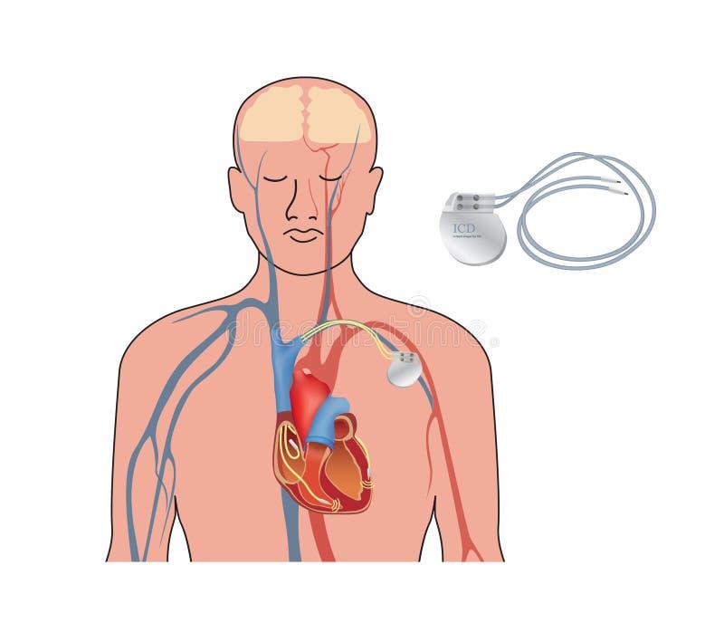 Marcapasos de corazón en trabajo Cardiaco artificial del corazón humano, ICD stock de ilustración